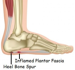 Plantar Fascitis: Learn about the common causes, symptoms and treatment options of this common cause of foot arch pain