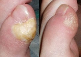 Foot corns and calluses