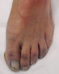 Changes in foot color may be a symptom of circulatory problems. Image source http://bit.ly/2hO0lbV