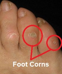 Foot corn causing pain on outside of foot