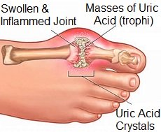 Gout often causes pain in the big toe, known as podagra