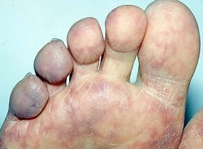 Blue Toe Syndrome: Causes foot pain and discoloration. Symptoms, diagnosis & treatment