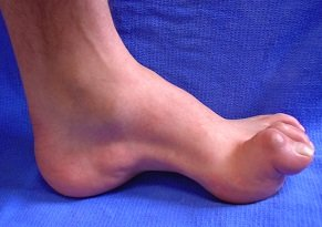Classic presentation of Charcot Marie Tooth Disease.  Note the high foot arch and curled toes.