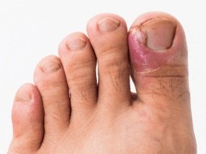 Ingrown Toenails: How to treat them and stop them coming back again