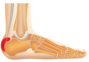 Heel Bursitis: Causes foot pain and swelling. Find out how to treat it fast.