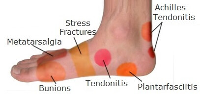 Foot Pain Diagnosis All The Help You Need To Work Out What Is Causing Your