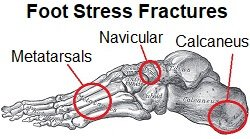 Runners can experience ongoing discomfort from a stress fracture
