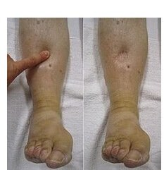 Pitting oedema leaves an indentation if you press on the swelling for a few seconds.  It is caused by excess water retention