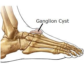 Foot ganglions can appear anywhere on the foot