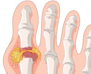 Gout: Common cause of sharp pain in big toe. Learn about causes, symptoms, diagnosis & treatment
