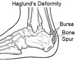 Inflammation of the retrocalcaneal bursa can develop after over-training or excessive running