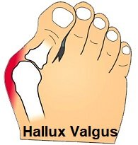 Hallux Abducto Valgus aka foot bunion