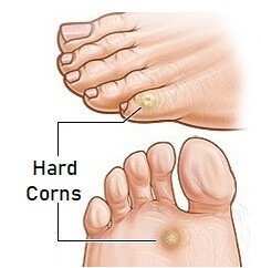 Hard foot corns tend to develop on the top and side of the toes. Find out about the causes, symptoms, diagnosis and treatment of foot corns