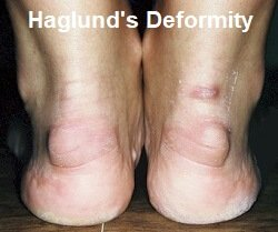 Retrocalcaneal Bursitis often co-exists with Haglund's Deformity