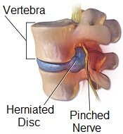A slipped disc can cause numb feet