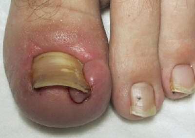 Ingrown Toenail treatment, causes, symptoms and prevention. Everything you need to know