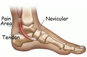 inner foot pain from posterior tibial tendonitis  often associated with  flat feet  find out