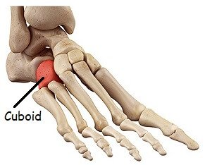 Cuboid Syndrome: One of the causes of outer foot pain. Find out about the causes, symptoms, diagnosis & treatment options
