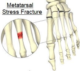 Stress fractures normally occur in the metatarsals, navicular or heel bone