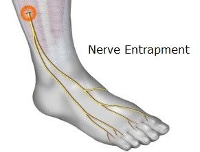 Compression of a nerve can cause burning pain on top of the foot. Find out about the causes, symptoms, diagnosis & treatment