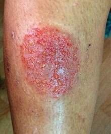 Nummular eczema presents as coin-shaped lesions on the skin