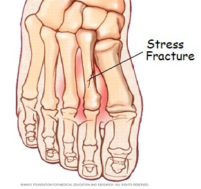 Pain Under The Foot From Stress Fractures: Causes, symptoms, diagnosis & treatment options. Often the result of over-training