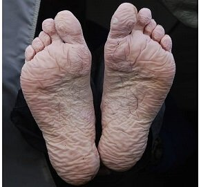 Trench Foot - the curse of festivals: Common causes, symptoms, diagnosis, treatment options and prevention strategies.
