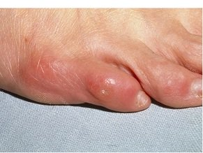 Corns & Calluses: How to treat them and stop them coming back