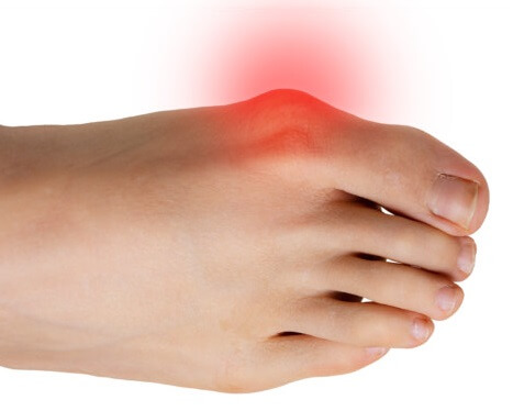 Bunions cause deformity and pain at the big toe. Find out about the causes, symptoms, diagnosis & treatment of this common cause of pain on the outside of the feet