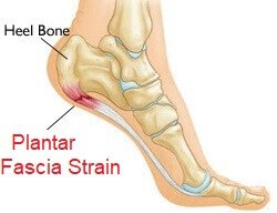 Plantar Fascia Strain: Causes, Symptoms, Diagnosis and Treatment