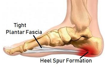 Heel Bone Spurs: Causes, Symptoms & Treatment - Foot Pain