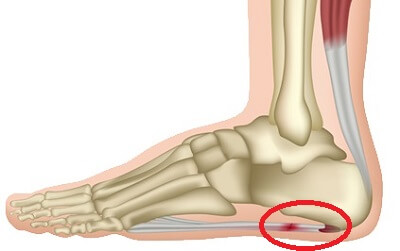 063c2dc25dbd8 Plantar Fasciitis Symptoms usually involve pain underneath the foot and at  the heel. Find out