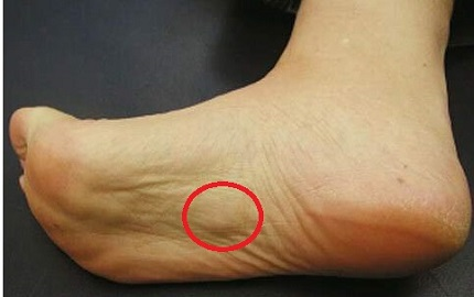 Plantar Fibromatosis is a foot condition where small nodules grow on the sole of the foot. Find out about the common causes, symptoms and treatment options