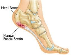 Plantar Fasciitis strain underneath the foot