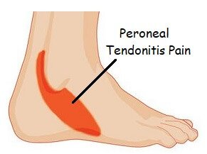 lateral foot pain - peroneal tendonitis: causes, symptoms, diagnosis &  treatment
