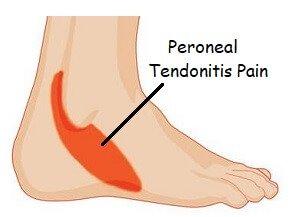 Shooting pain in heel after running