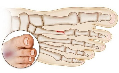 Stress Fracture Foot Problems: Causes, Symptoms, Treatment & Prevention