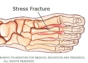 Stress fractures are a common cause of pain on top of the foot. Find out about the causes, symptoms, diagnosis & treatment options