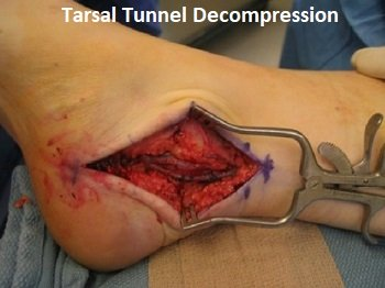 Tarsal Tunnel Decompression: What happens during and after surgery