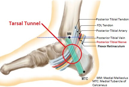 Tarsal Tunnel Structures of the Foot