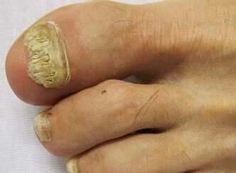 Fungal nail infections are a common cause of thick toenails