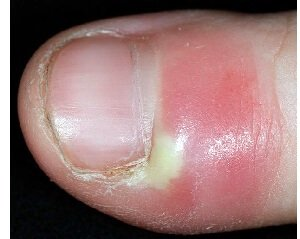 Paronchyia is caused by a bacterial infection resulting in inflammation, discoloration and thickening of nails and the surrounding skin