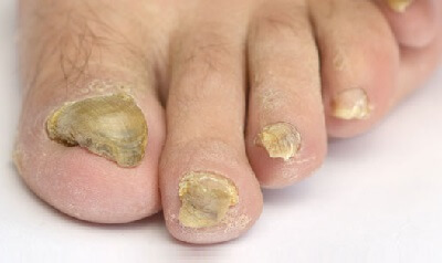 Thick Toenails: Diagnosis & Treatment - Foot Pain Explored