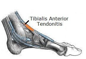 Inflammation in the Tibialis Anterior tendon causes pain on top of the foot. Find out about the causes, symptoms & treatment of foot tendonitis