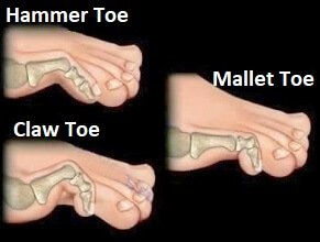 Claw, mallet and hammer toe are common causes of toe joint pain
