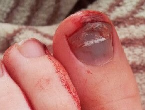 Tennis Toe is a common cause of toe pain with blood pooling under the nail