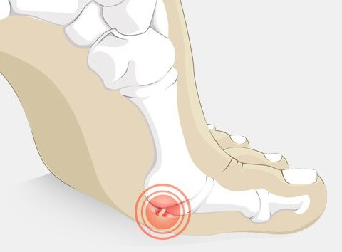3d703c3bc91 Toe Joint Pain: Causes & Treatment - Foot Pain Explored