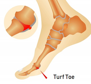 Turf Toe: Causes, Symptoms, Diagnosis & Treatment