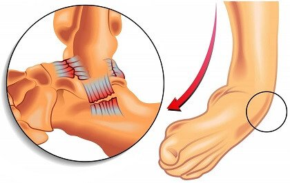 Twisted Ankle: Causes, Symptoms, Diagnosis and Treatment Options for Ankle Sprains