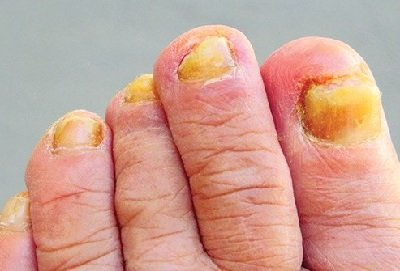 Yellow Toenails: Common causes and treatment options for yellow toenails